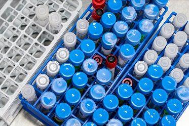 روسيا تبدأ المرحلة النهائية من اختبارات لقاح مضاد لفيروس كورونا