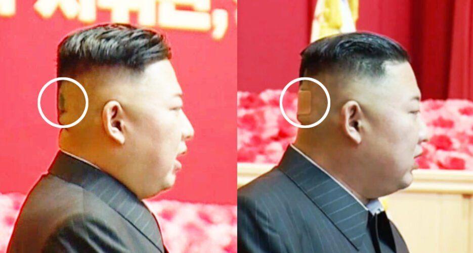 بعد فقدانه للوزن.. بقعة غريبة على رأس كيم جونغ أون تشدّ الأنظار